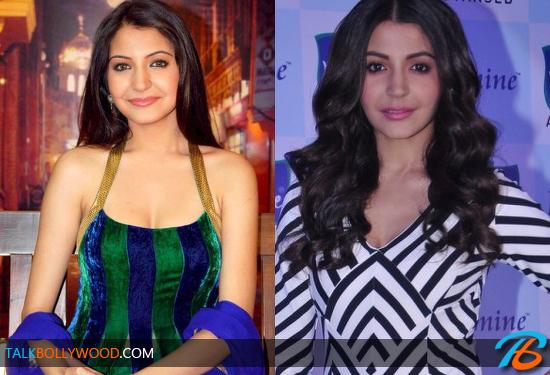 Anushka-Sharma-Plastic-Surgery-tbwm